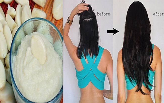 Try This Home Made Recipe To Grow Your Hair Up To 4 Inches In A Week Homemade…