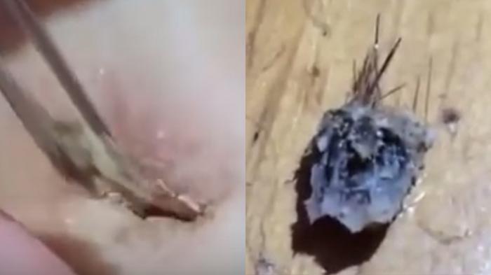 Video Unik - Ya Ampun! Lihat Apa Yang Ditarik Perempuan Ini Dari Pusar…