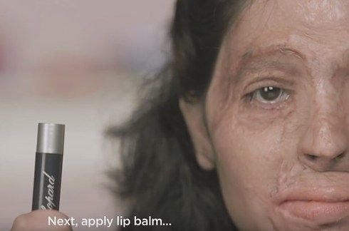 This Acid Attack Survivor Shows How Easily Available Acid Is, Through A Makeup Tutorial
