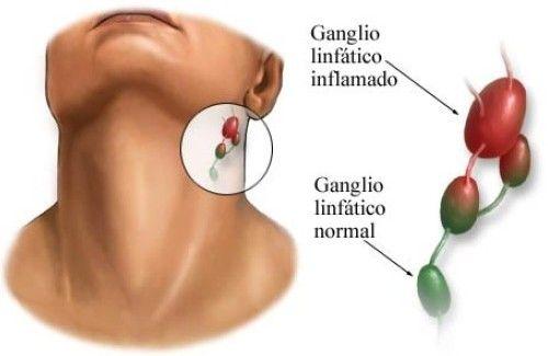 Inflamación de los ganglios linfáticos: ¿a qué se debe?