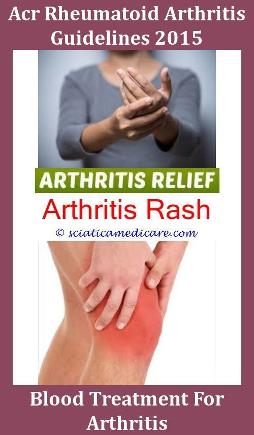 exercise refferal case study for rheumatoid arthritis Rheumatoid arthritis (ra) affects over 53 million people in the us and 1% of the world's population 1  unfortunately, 1 in 250 kids is said to have some form of rheumatoid arthritis.