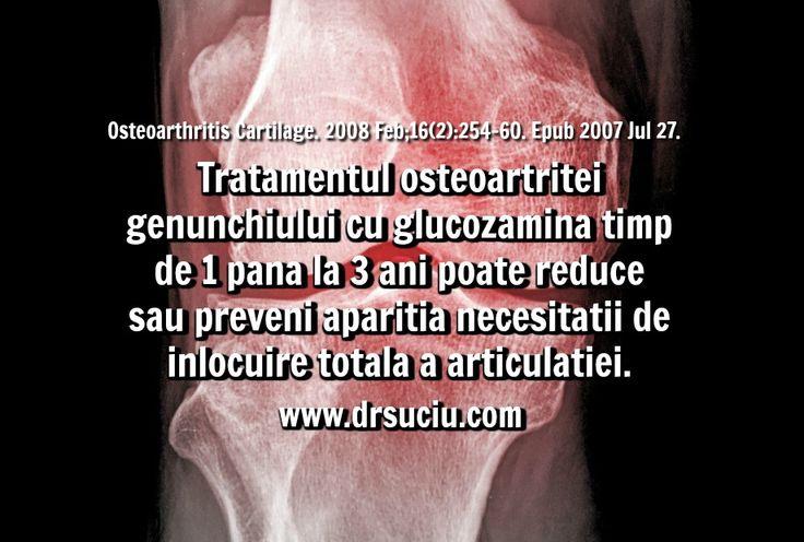 Photo Beneficiile glucozaminei in caz de artroza a genunchiului - drsuciu