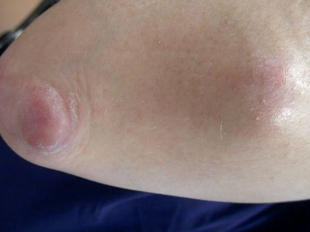 Rheumatologe: Rheumatoid nodules
