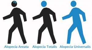 Areas of the Head and Body Affected By Alopecia Areata