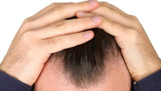 Various hormones, such as DHT hair loss, androgens, growth hormone, estradiol, thyroxin, prolactin and melatonin have effects on hair