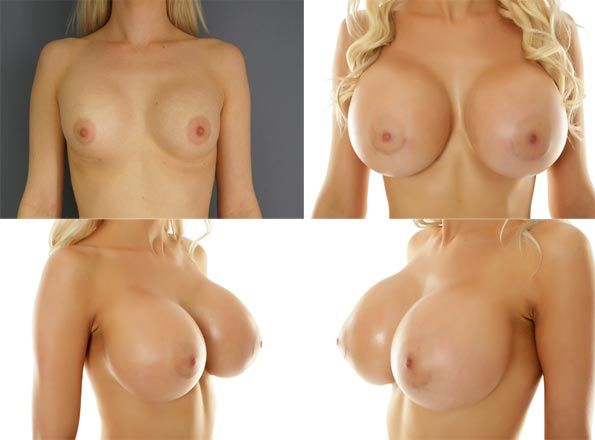 Join Nude breast enlargement sexy