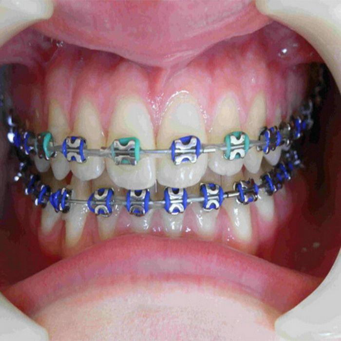 Color Orthodontic Brac...
