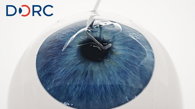 For surgical instrument manufacturer DORC weve created an animation which describes the animation of a corneal transplantation. There are different methods to transplant. The recently developed method is DMEK (Descemet Membrane Endothelial Keratoplasty) DORC has developed a toolkit in cooperation with the NIIOS to make this new kind of surgery possible. The animation shows the surgery step by step to make ophthalmologists aware of the new method.