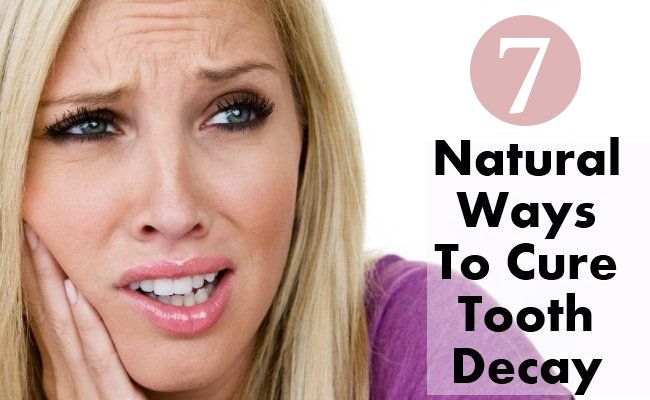 Tooth Decay Natural Treatment