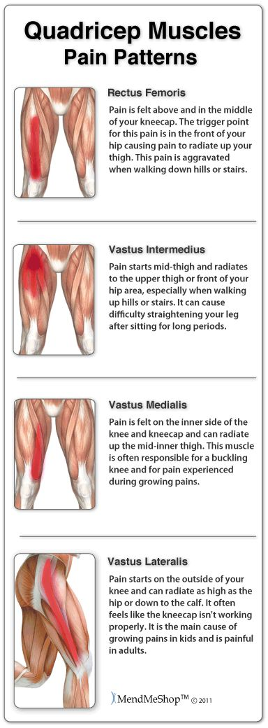 Quadricep Muscle Strain - the pattern of pain. #quadricepmuscle