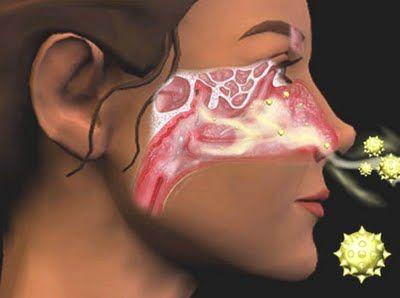 A rinite é uma inflamação da mucosa nasal de origem alérgica.