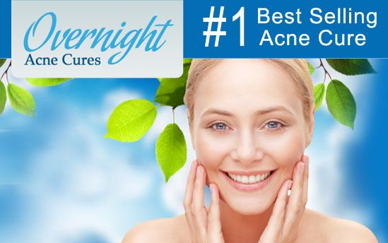 Overnight Acne Cures