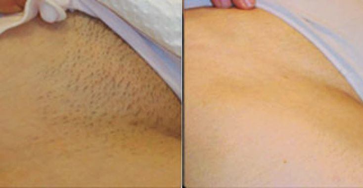 Sugaring the bikini area or a sugar Brazilian