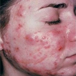 Home Remedies For Cystic Acne - Natural Treatments & Cure For Cystic Acne | Search Home Remedy