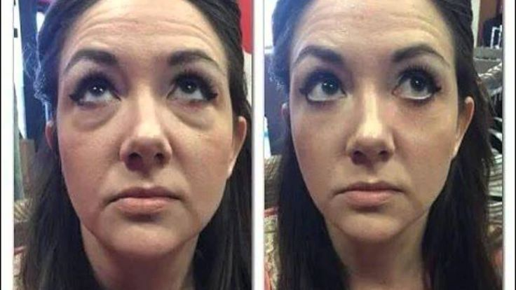 LOOK AT THE EYE WITH AND THE ONE WITHOUT! http://wrinkles911.com/  Buy It Here: http://earntoday.jeunesseglobal.com/products.aspx?p=INSTANTLY_AGELESS