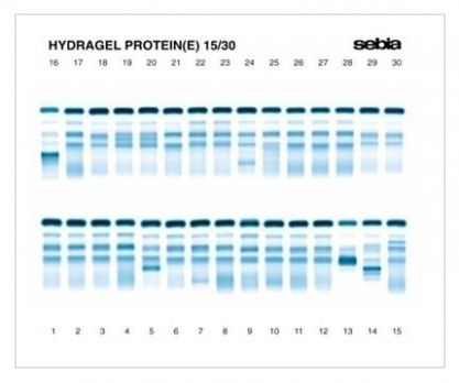 Hydrasys 2 | Sebia _ instrument offers sample application, electrophoretic migration on agarose gels, and staining with amidoblack.  Separation and characterization of serum protein profiles, immunoglobulins heavy and light chains using specific antisera, urine protein profiles (after their treatment w/SDS: Sodium Dodecyl Sulfate and visualized w/ acid violet stain), hemoglobin acid & alkaline electrophoresis (pH 5.9 & 8.5)