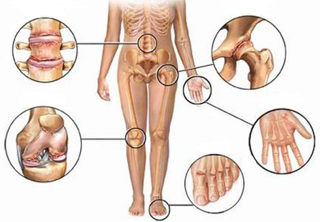 How To Get Rid Of Joint Pain - How to Get Rid of Things