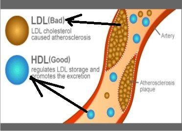 Image result for what is normal cholesterol level