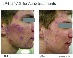 Acne and Scarring Relief by Laser Therapy! References :: http://bordermedicallaser.com.au/laser-treatments/acne-scar-treatment/ @laserandhealthacademy @fotona #acnerelief #scarrevision #teamBMLA