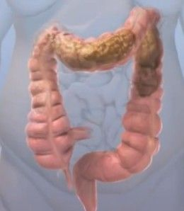 obstipation - fecal impaction that must be removed. Back pain = overriding symptom of obstipation