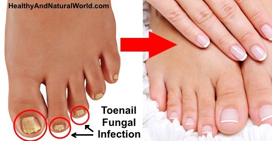 Every second person out there suffers from toenail fungus. It's really painful and ugly.