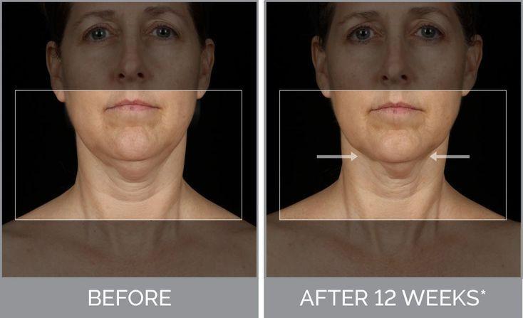 Top Einzigartige Ideen: Facialist Skin Care für Akne natürliche Hautpflege fü…