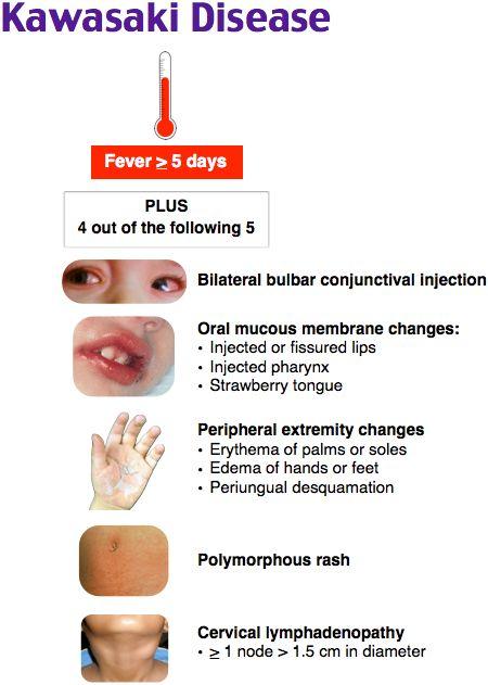 Kawasaki Disease Rosh Review