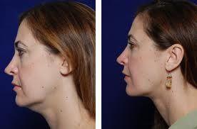 RF skin tightening  Non invasive painless and cost effective Westbrook CT 203-565-7853 www.secrebeauty4u.com www.facebook.com/secretbeautyforu