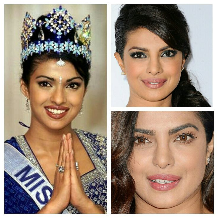 Priyanka Chopra  - before/after: nose job, upper lip injection, contact lenses, - she was Miss World 2000 before plustic sugery