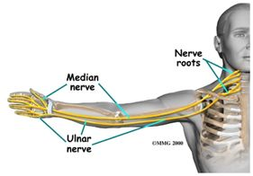 Pinched nerve in the neck that affects the arm and hand.