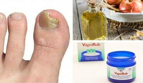 6 einfache Mittel gegen Nagelpilz