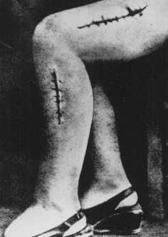 "Holocaust Auschwitz Concentration Camp  Medical  Experimentssadly.  this happened to my father's cousin who was german and not a jew. they shoved boards into her legs to see what would happen- a 'scientific experiment"" they said"
