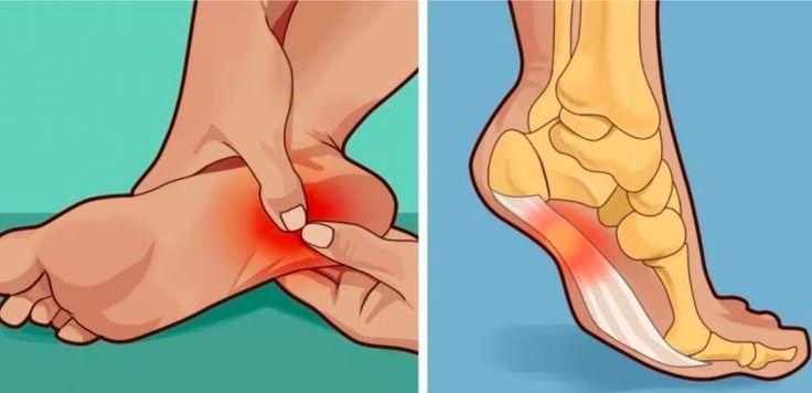 3 astuces pour soulager les douleurs aux talons noté 4 - 8 votes L'épine de Lenoir, également connue sous le nom d'aponévrosite plantaire et de Fasciite plantaire provient d'une excroissance osseuse du talon qui irrite le ligament sous votre pied. Lessymptômesprincipaux sont une vive douleur au talon fréquemment accompagnée d'une douleur au niveau del'arche du...