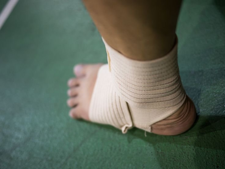 Broken ankle what factors make you eligible for a claim