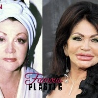 Jackie Stallone plastic surgery 2012
