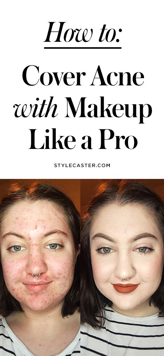 How to Cover Acne with Makeup (Like a Pro!)   This woman's before-and-after photo is living proof that you can flawlessly conceal even the worst breakouts   @stylecaster