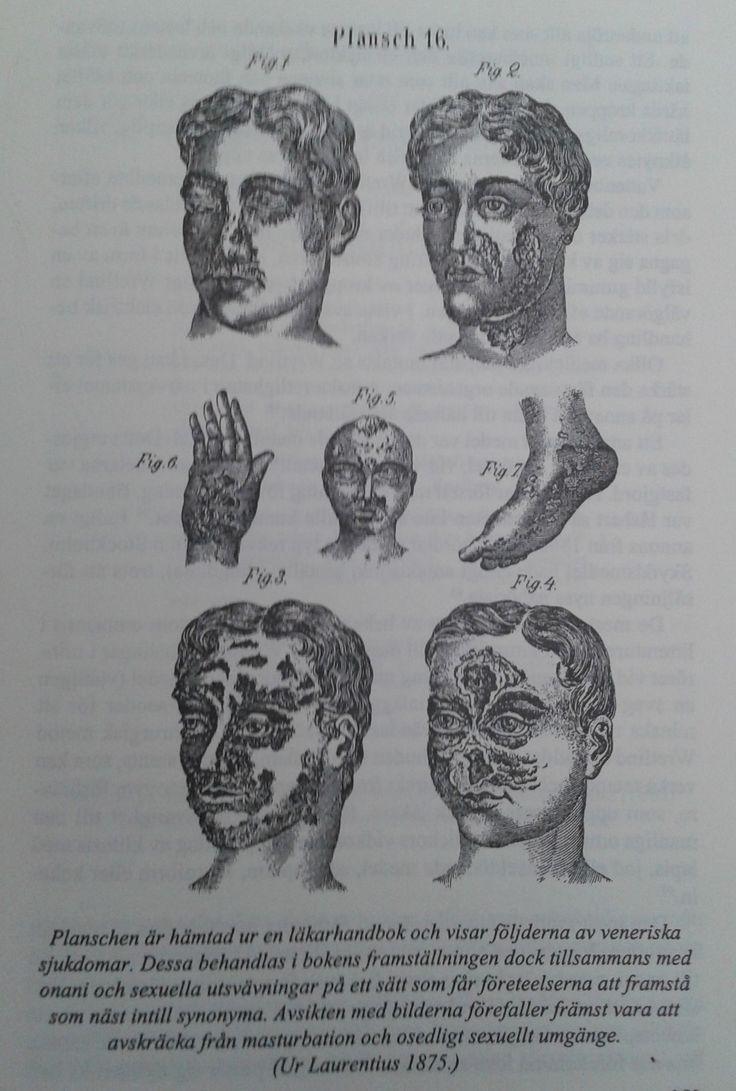 1875. Från boken Laurentius.bilden visar konsekvenserna av onani.
