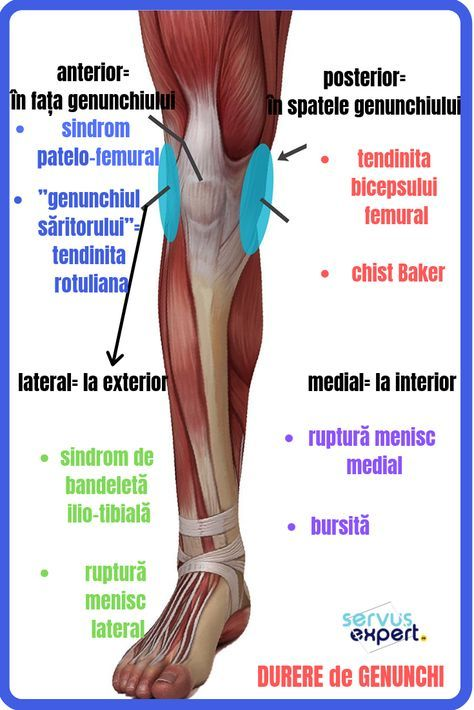 tratamentul complex al artrozei