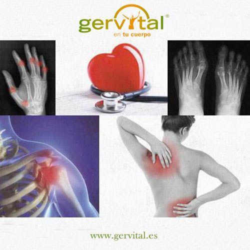 El dolor de espalda lumbar encabeza la lista de los problemas de salud crónicos más frecuentes en España, afectando al 18,6% de la población; seguido de la hipertensión arterial, y de la artrosis, artritis o reumatismo.