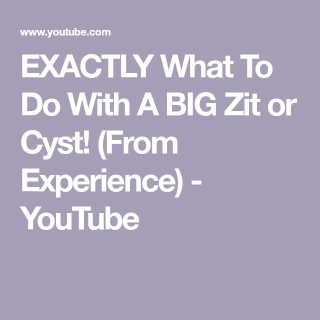 EXACTLY What To Do With A BIG Zit or Cyst! (From Experience) - YouTube