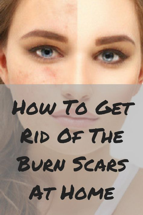 How To Get Rid Of The Burn Scars At Home