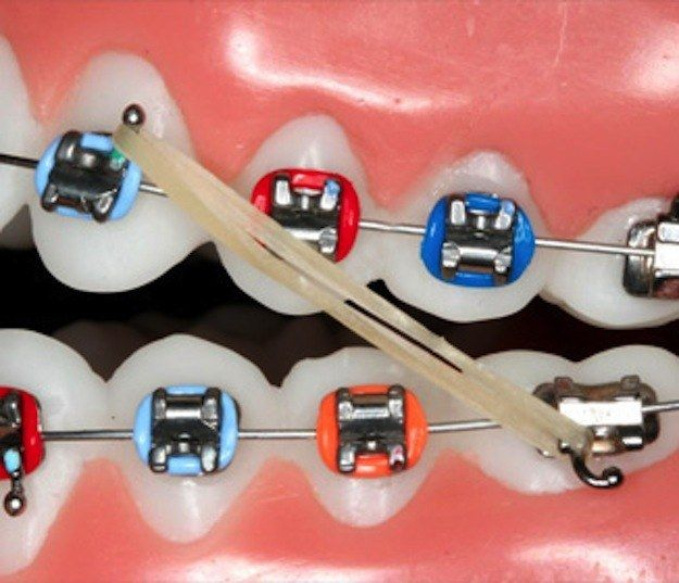 AND THE RUBBER BANDS. WHAT SINS DID HUMANS COMMIT TO HAVE TO WEAR RUBBER BANDS? | 18 Reasons Braces Are The Worst Thing That Will Ever Happen To You