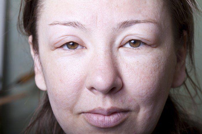 Causas y remedios naturales para una cara hinchada