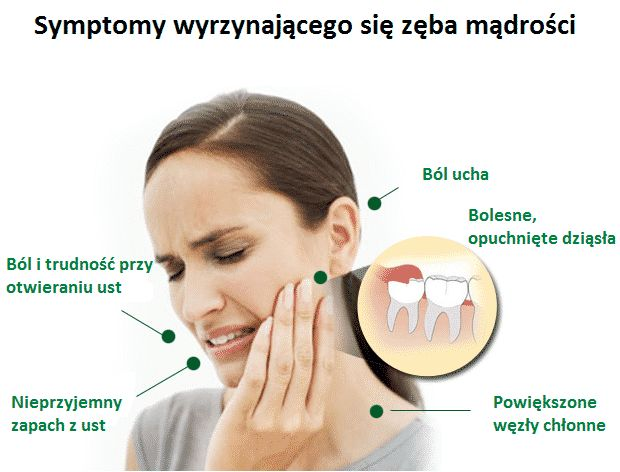 Zapraszamy na chirurgiczne usuwanie zębów mądrości w celu uniknięcia ciągłych stanów zapalnych, powikłań i innych poważnych problemów w późniejszych latach życia!  #Implantis #zębymądrości #zdrowie #zabieg