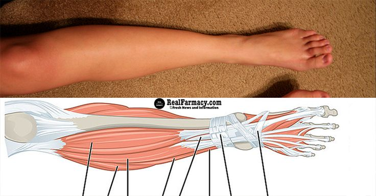 Leg cramps at night – nocturnal leg cramps – are pains that occur during the