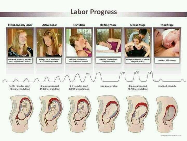 """Do not walk into the hospital smiling because you think you're in labor... if you're smiling...you're not in labor. If you """"think"""" you're in labor....you're not in labor."""