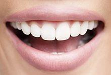 La Meilleure Astuce Pour Avoir les Dents Blanches Naturellement.