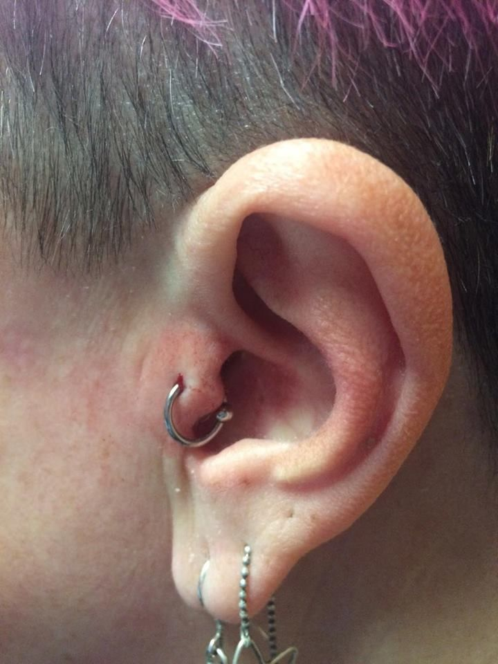 Fresh tragus piercing with a BCR by Poh