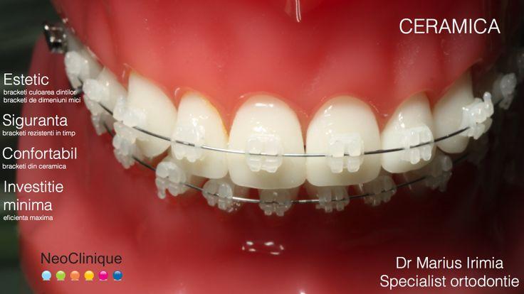 http://www.neoclinique.ro/ro/serviciu/37/aparat-dentar-ceramic/