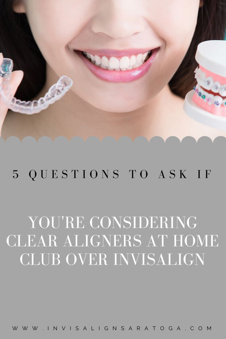 Considering Clear Aligners at Home Club over Invisalign? 5